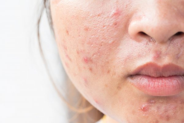 Pimples Scars